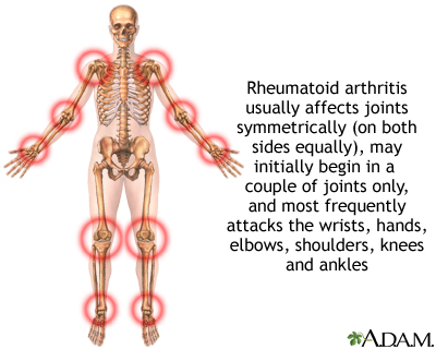 case research projects associated with rheumatoid arthritis